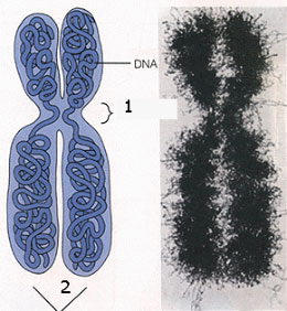 Genetske bolesti