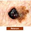 melanom-11