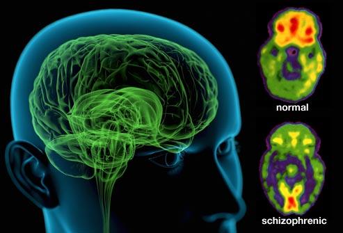 Shizofrenija