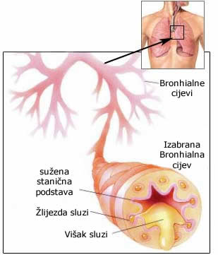 Recidivni opstruktivni bronhitis