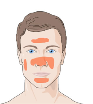 Sistemski lupus erythematodes