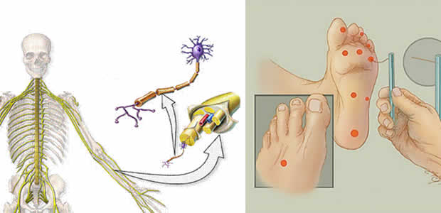 Dijabetička neuropatija – Diabetic neuropathy