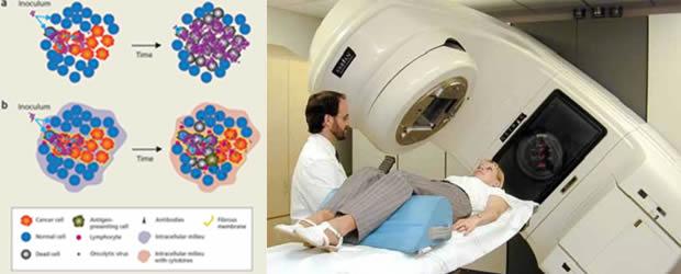 Osjetljivost tumorskih ćelija na zračenje