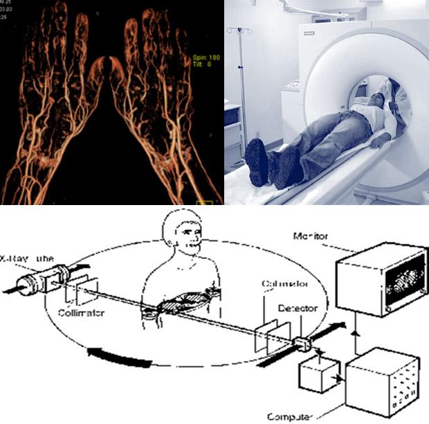Kompjuterizovana tomografska angiografija
