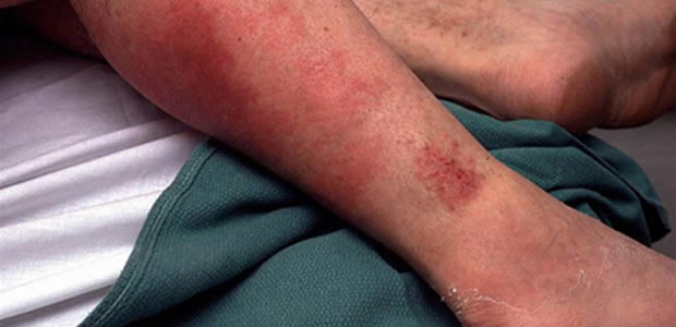 Bakterijske infekcije kože
