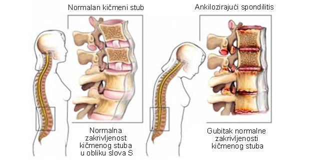 Ankilozirajući spondilitis