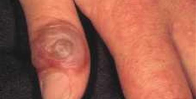 Paravaccinia ili Milker's Nodule