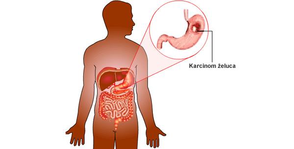 Karcinom želuca