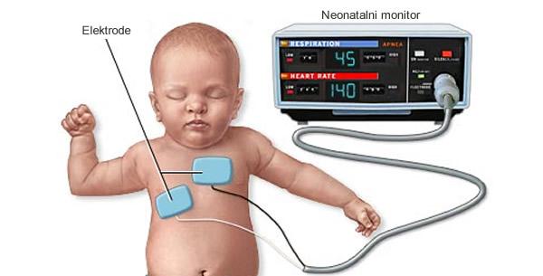 Anatomske karakteristike srca dojenčeta