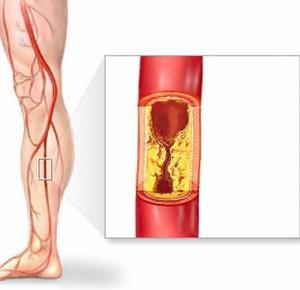 Akutna okluzija periferne arterije