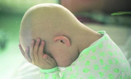 U svijetu godišnje oboli 160.000 djece od nekog oblika zloćudnog tumora