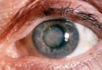 Najsavremenija metoda operacije katarakte