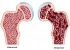Osteoporoza sve češća!!!