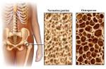 UKCS: Od 10.509 pacijentica, njih 26 posto s osteoporozom