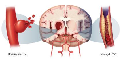 Prevencija moždanog udara