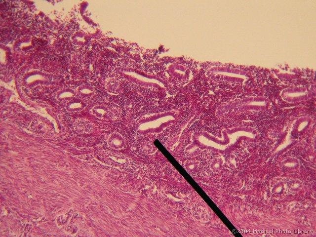 Endometrij