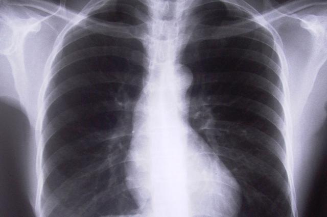 Hronična opstruktivna bolest pluća