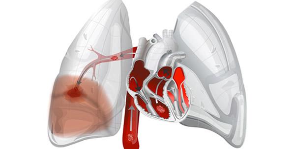 Plućna embolija