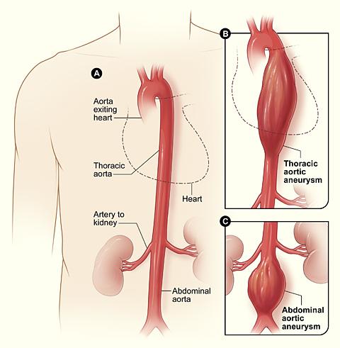 Aneurizma aorte