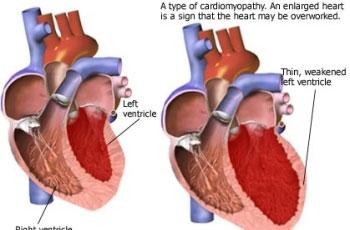 Insuficijencija lijevog srca