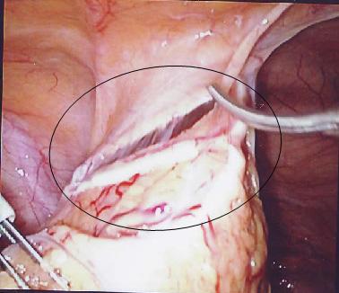 Proboj materičnog zida – Perforatio uteri