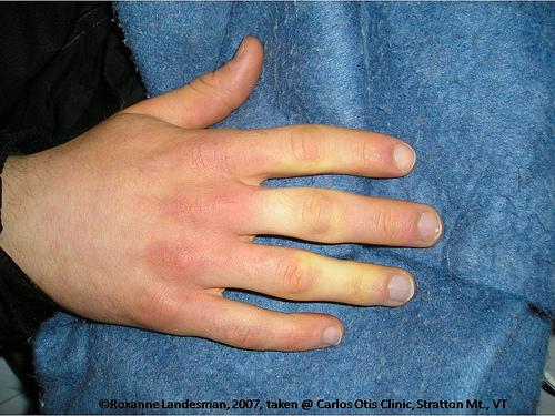 Raynaudov sindrom