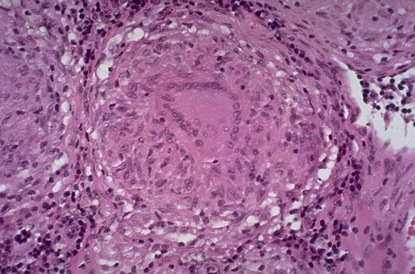 Akutni virusni hepatitis