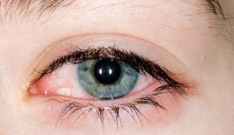 Konjuktivitisi alergiskog porijekla