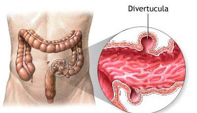Divertikuloza crijeva