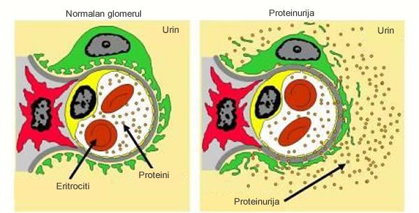 Proteinurija