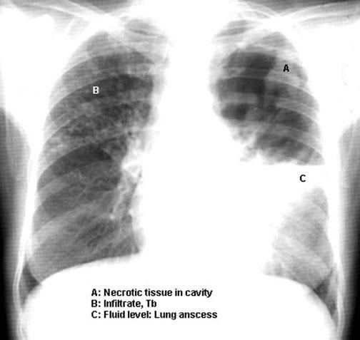 Apsces pluća