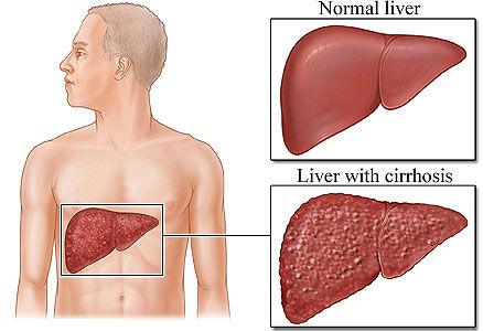 Bilijarna ciroza
