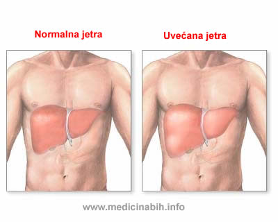 hemohromatoza