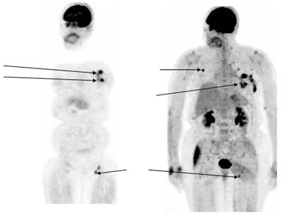 Non-Hodgkinov limfom