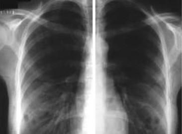 Vrste emfizema pluća