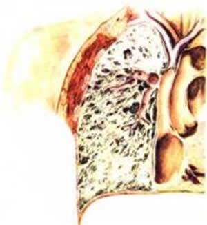 Kožne promjene u toku rendgenskog zračenja