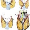 Glandula thyreoidea