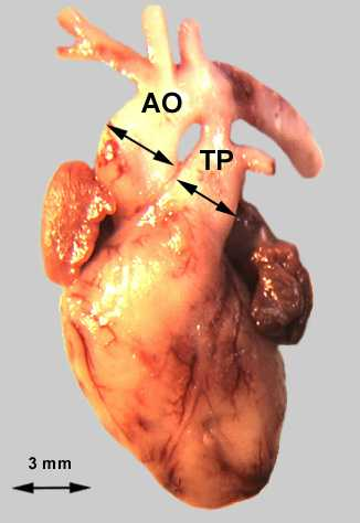 Truncus pulmonalis