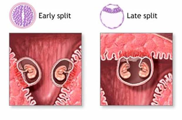 Višeplodna trudnoća