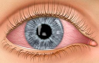 Komplikacije prilikom nošenja kontaktnih leća