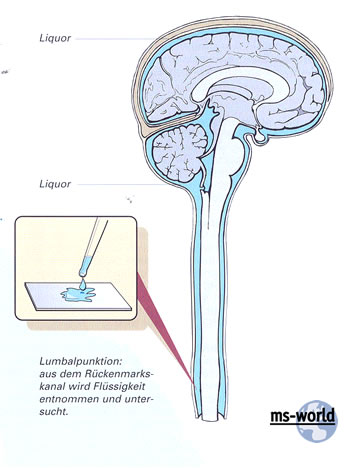 Liquor cerebrospinalis