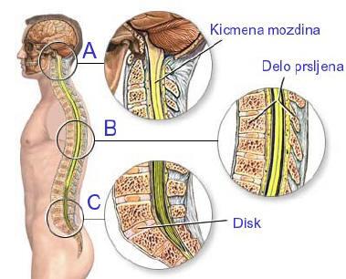 Spinalne povrede
