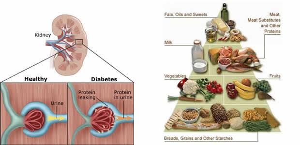 Dijabetička nefropatija
