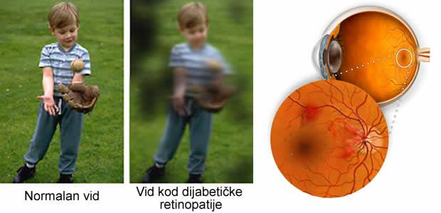 Dijabetička retinopatija – Diabetic retinopathy