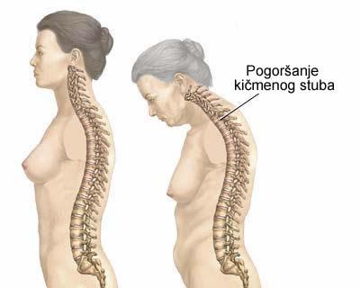 Osteoporoza – Osteoporosis