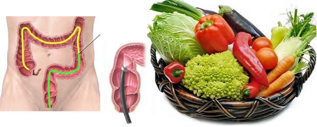 Spriječite rak debelog crijeva