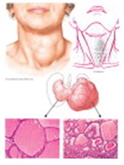 Benigni tumori štitne žlijezde