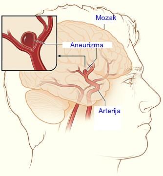 Cerebralna aneurizma