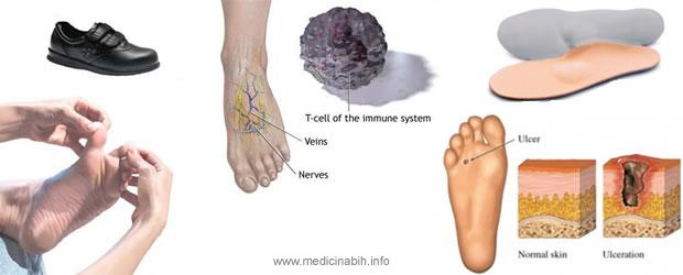 Dijabetičko stopalo – Diabetic foot