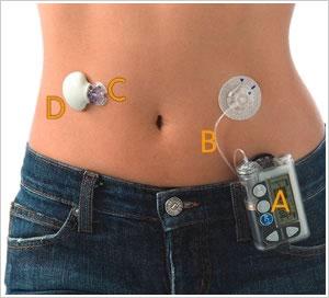 inzulinska pumpa